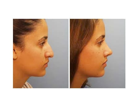 What is Scarless Rhinoplasty?