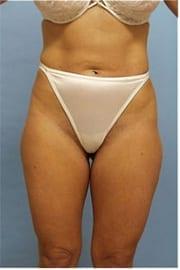 http://www.rhinoplasty.org/wp-content/uploads/2014/11/Layer-0-1.jpg
