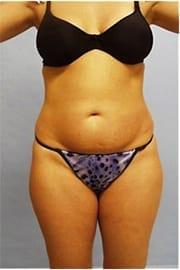 http://www.rhinoplasty.org/wp-content/uploads/2014/11/Layer-0-10.jpg