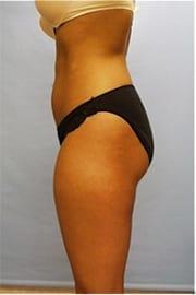 http://www.rhinoplasty.org/wp-content/uploads/2014/11/Layer-0-67.jpg