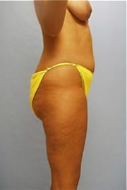 http://www.rhinoplasty.org/wp-content/uploads/2014/11/Layer-0-83.jpg