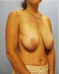 http://www.rhinoplasty.org/wp-content/uploads/2014/12/Layer-01-31.jpg