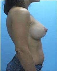 http://www.rhinoplasty.org/wp-content/uploads/2014/12/Layer-02-1001.jpg