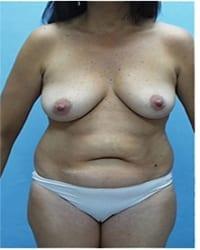 http://www.rhinoplasty.org/wp-content/uploads/2014/12/Layer-02-1051.jpg