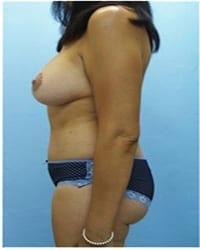 http://www.rhinoplasty.org/wp-content/uploads/2014/12/Layer-02-1151.jpg