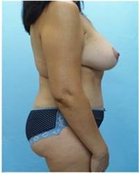 http://www.rhinoplasty.org/wp-content/uploads/2014/12/Layer-02-1611.jpg
