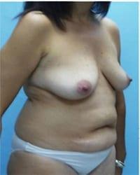 http://www.rhinoplasty.org/wp-content/uploads/2014/12/Layer-02-1851.jpg
