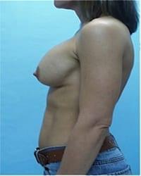 http://www.rhinoplasty.org/wp-content/uploads/2014/12/Layer-02-401.jpg
