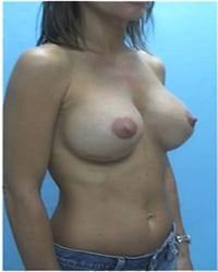 http://www.rhinoplasty.org/wp-content/uploads/2014/12/Layer-02-701.jpg