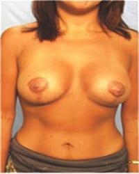 http://www.rhinoplasty.org/wp-content/uploads/2014/12/Layer-03-111.jpg