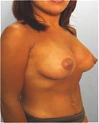 http://www.rhinoplasty.org/wp-content/uploads/2014/12/Layer-03-131.jpg
