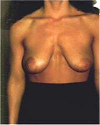 http://www.rhinoplasty.org/wp-content/uploads/2014/12/Layer-03-152.jpg