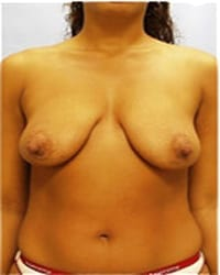 http://www.rhinoplasty.org/wp-content/uploads/2014/12/Layer-03-17.jpg