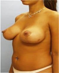 http://www.rhinoplasty.org/wp-content/uploads/2014/12/Layer-03-31.jpg