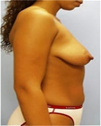 http://www.rhinoplasty.org/wp-content/uploads/2014/12/Layer-03-51.jpg