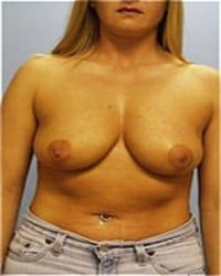 http://www.rhinoplasty.org/wp-content/uploads/2014/12/Layer-03-71.jpg