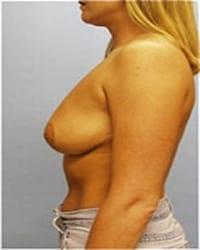 http://www.rhinoplasty.org/wp-content/uploads/2014/12/Layer-03-91.jpg