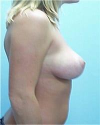 http://www.rhinoplasty.org/wp-content/uploads/2014/12/Layer-04-102.jpg