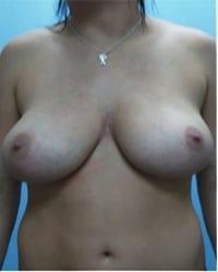 http://www.rhinoplasty.org/wp-content/uploads/2014/12/Layer-04-13.jpg
