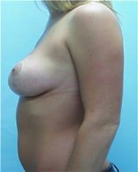 http://www.rhinoplasty.org/wp-content/uploads/2014/12/Layer-04-182.jpg