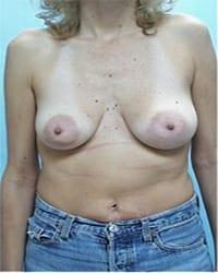 http://www.rhinoplasty.org/wp-content/uploads/2014/12/Layer-05-11.jpg