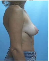 http://www.rhinoplasty.org/wp-content/uploads/2014/12/Layer-05-171.jpg