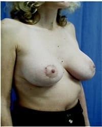 http://www.rhinoplasty.org/wp-content/uploads/2014/12/Layer-05-291.jpg