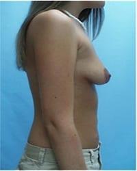 http://www.rhinoplasty.org/wp-content/uploads/2014/12/Layer-05-571.jpg