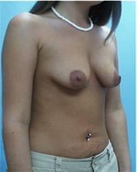 http://www.rhinoplasty.org/wp-content/uploads/2014/12/Layer-05-701.jpg