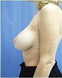 http://www.rhinoplasty.org/wp-content/uploads/2014/12/Layer-05-71.jpg