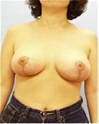 http://www.rhinoplasty.org/wp-content/uploads/2014/12/Layer-06-1071.jpg