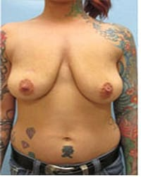 http://www.rhinoplasty.org/wp-content/uploads/2014/12/Layer-06-12.jpg