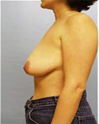 http://www.rhinoplasty.org/wp-content/uploads/2014/12/Layer-06-1221.jpg
