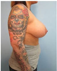 http://www.rhinoplasty.org/wp-content/uploads/2014/12/Layer-06-232.jpg
