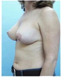 http://www.rhinoplasty.org/wp-content/uploads/2014/12/Layer-06-411.jpg