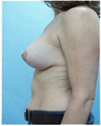 http://www.rhinoplasty.org/wp-content/uploads/2014/12/Layer-06-541.jpg