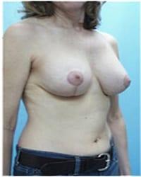 http://www.rhinoplasty.org/wp-content/uploads/2014/12/Layer-06-711.jpg
