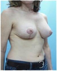 http://www.rhinoplasty.org/wp-content/uploads/2014/12/Layer-06-921.jpg
