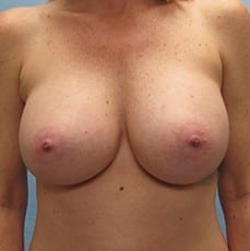 http://www.rhinoplasty.org/wp-content/uploads/2015/01/Breast-Aug-Before-2.jpg