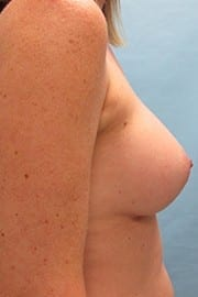 http://www.rhinoplasty.org/wp-content/uploads/2015/01/Breast-Aug-Before-Side-2.jpg