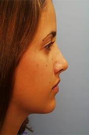 http://www.rhinoplasty.org/wp-content/uploads/2015/12/Jennifer-2-copy.jpg
