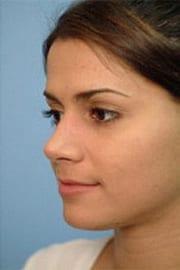 http://www.rhinoplasty.org/wp-content/uploads/2015/12/Layer-0-91.jpg