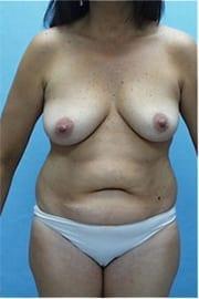 http://www.rhinoplasty.org/wp-content/uploads/2015/12/Layer-0-18.jpg