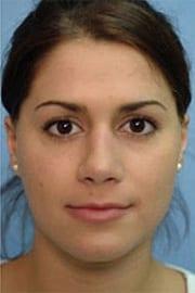 http://www.rhinoplasty.org/wp-content/uploads/2015/12/Layer-0-11.jpg