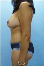 http://www.rhinoplasty.org/wp-content/uploads/2015/12/Layer-0-221.jpg