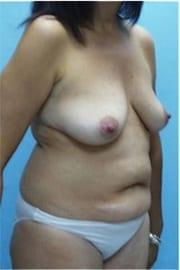 http://www.rhinoplasty.org/wp-content/uploads/2015/12/Layer-0-231.jpg