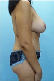 http://www.rhinoplasty.org/wp-content/uploads/2015/12/Layer-0-28.jpg