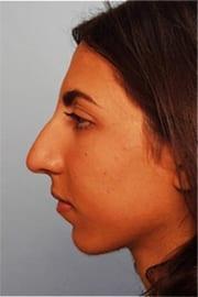 http://www.rhinoplasty.org/wp-content/uploads/2015/12/Layer-0-3-3.jpg