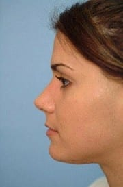 http://www.rhinoplasty.org/wp-content/uploads/2015/12/Layer-0-3-e1456856914833.jpg