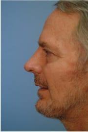 http://www.rhinoplasty.org/wp-content/uploads/2015/12/Layer-0-42.jpg